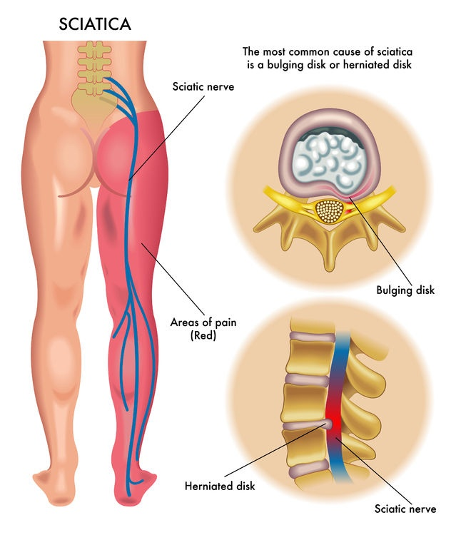 capital-physiotherapy-sciatia-anatomy-diagram