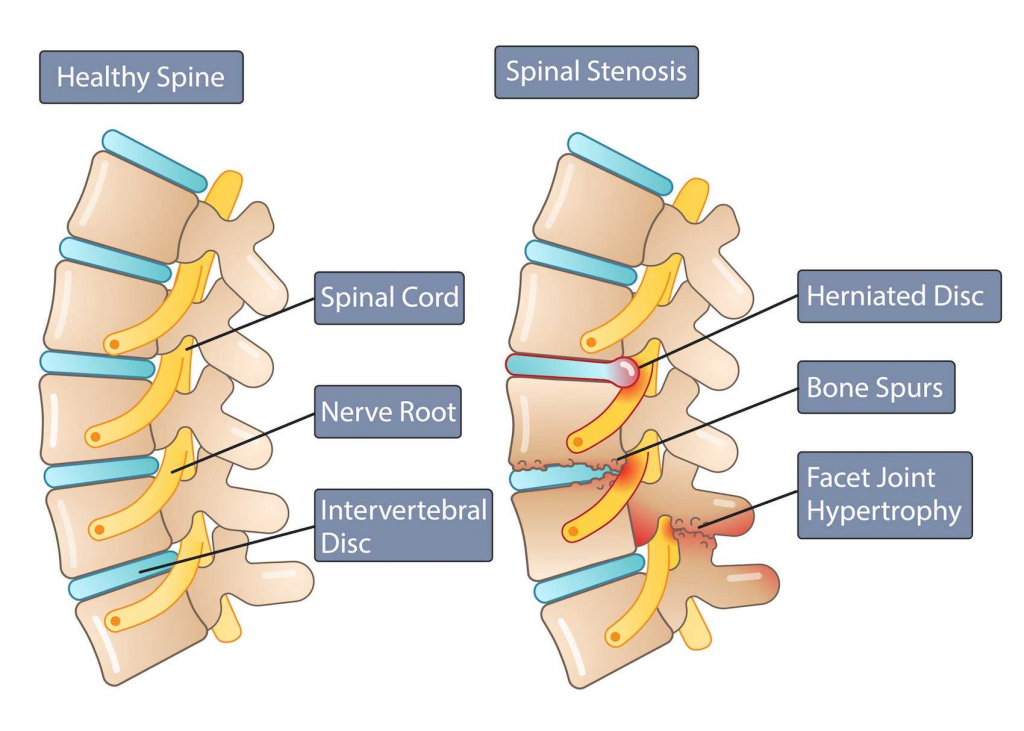 capital-physiotherapy-spine-anatomy-diagram