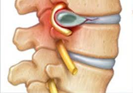 capital-physiotherapy-herniated-disc-diagram