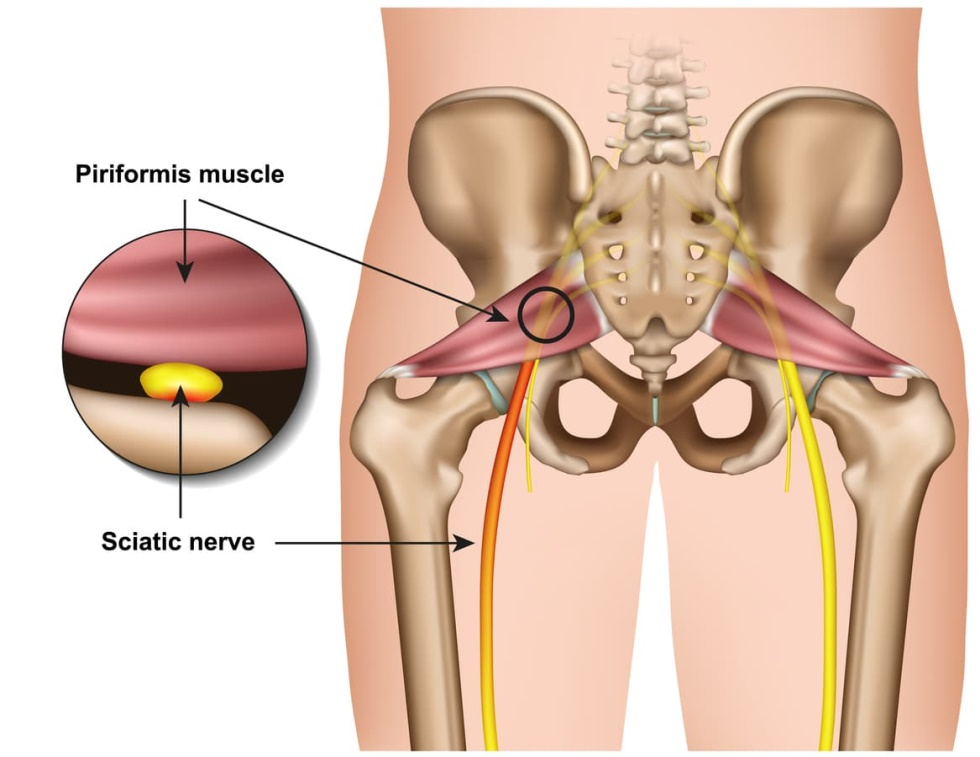 capital physiotherapy piriformis muscle sciatic nerve diagram